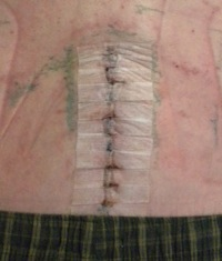 Open Fusion Incision