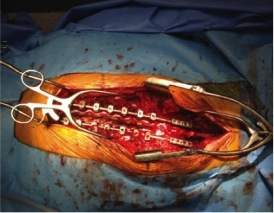 Open incision with retractors