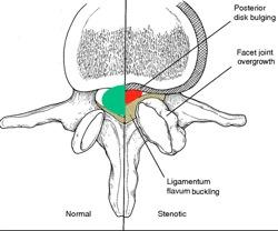 Ligamentum flavum buckling  Google Search 1