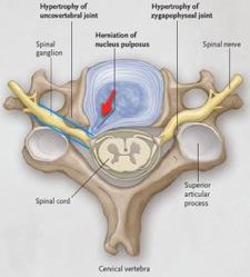 Spinal  con Fusion | neurosurgery explained