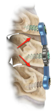 Atlantis Translational Anterior Cervical Plate System 1