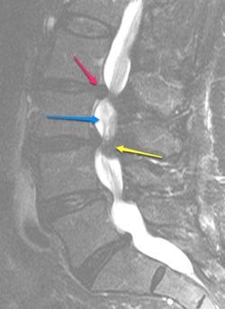 Sagittal T2 Lumbar Stenosis jpg