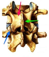 Annotated Netter Lumbar Spine jpg