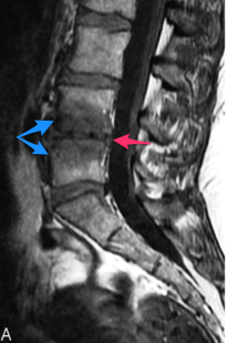 Modic Changes Rahme R Moussa R The modic vertebral endplate and marrow changes pathologic significance and relation to low back pain and segmental instability of the lumbar spine AJNR Am J Neuroradiol 29 838 42 2008
