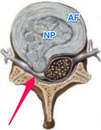 Herniated disc netter Google Search