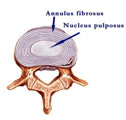 Intervertebral disc cartilage cartilage defect torn cartilage cartilage degeneration sports injury orthopedics arthroscopy cartilage cell implantation chonrocyte implantation