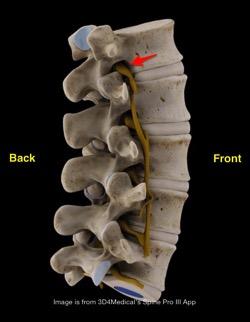 DRG in foramen