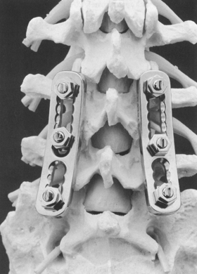 Implants in Spinal Surgery Part II: pedicle screws and other (very
